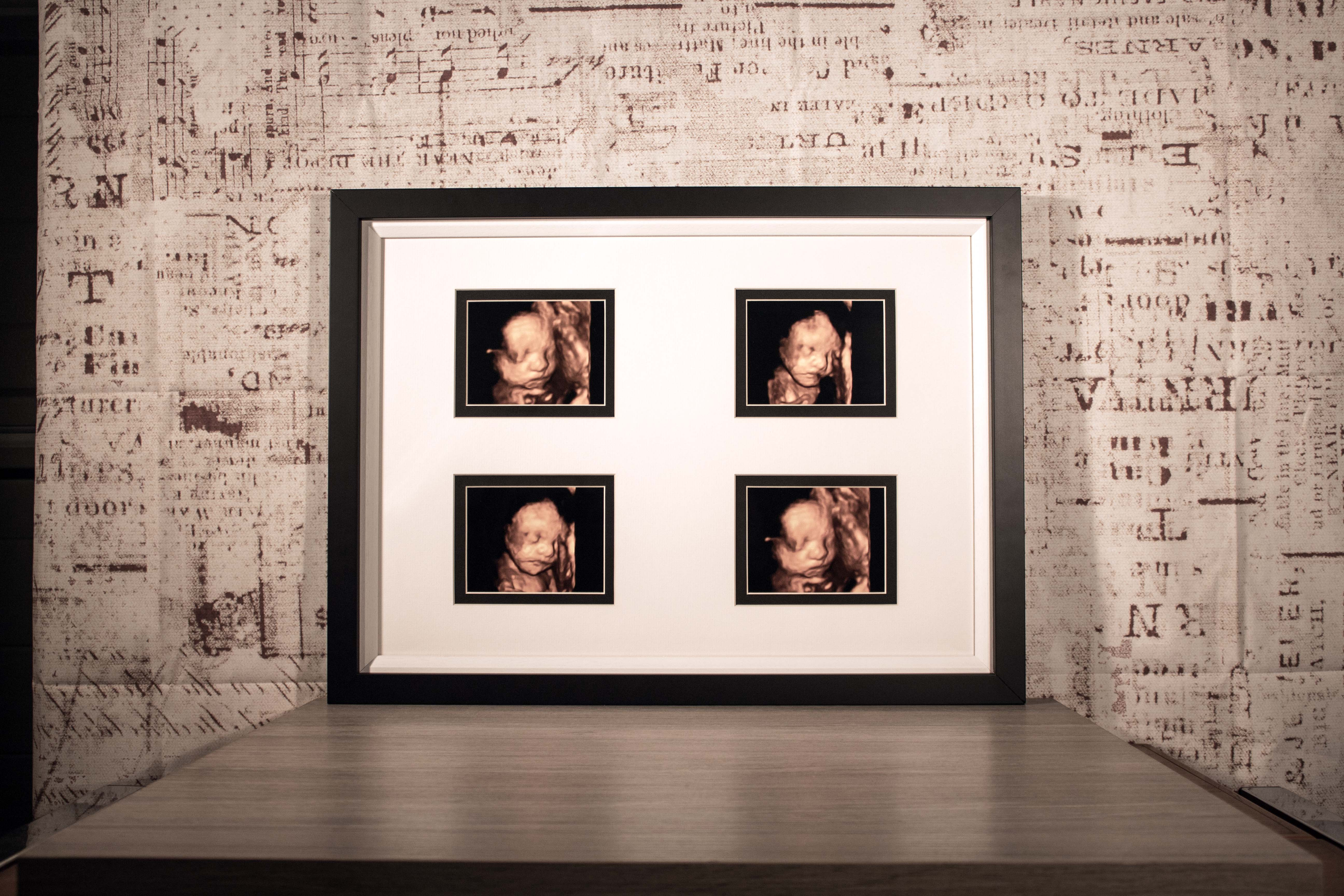 Personalised framed pictures archives jj crafting baby scan pictures 4d in bespoke mount frame jeuxipadfo Choice Image